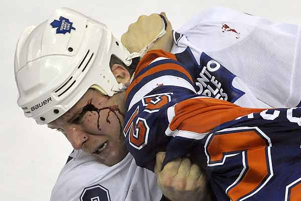 Toronto Maple Leafs' Mike Komisarek is cut during a fight with Edmonton Oilers' Jean-Francois Jacques in the third period of their NHL hockey game in Edmonton.
