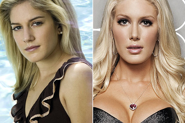 heidi montag plastic surgery before and after. Heidi Montag. BEFORE AND
