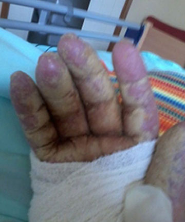 A photo of Lois Morrison's hand taken at Wiltshire Lifecare in Rangiora