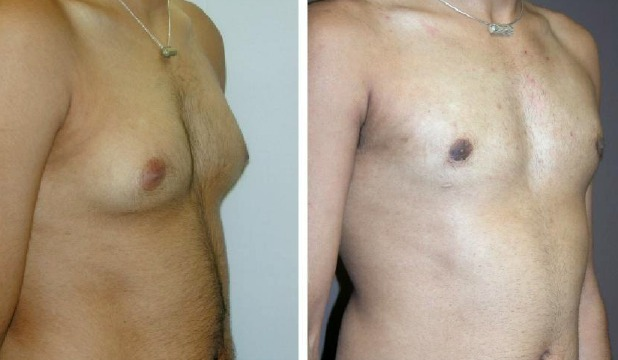 Plastic surgeons confirm an increase in the number of males seeking breast reduction surgery.