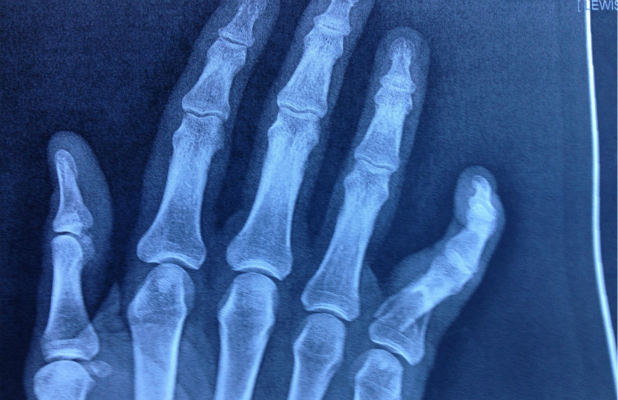 X Rays Of Broken Fingers