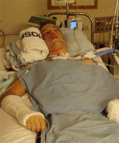 SURVIVOR: A serious cycling accident put Jonathan Gee in a coma just a year ago.