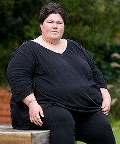 obese women tell of surgery letdown stuff co nz