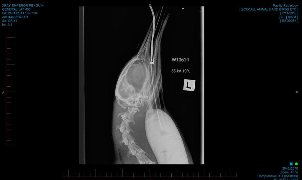 An Xray taken before the penguin's procedure on Friday shows sand filling his stomach and throat.