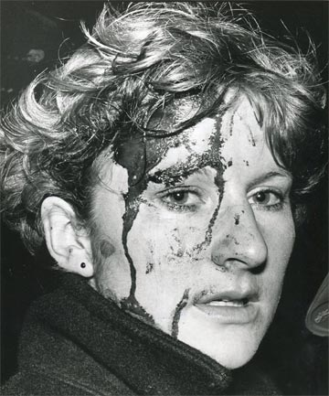 Blood and tears mingle on the face of this Wellington protester after a clash with the infamous police Red Squad in Molesworth St on July 29, 1981.