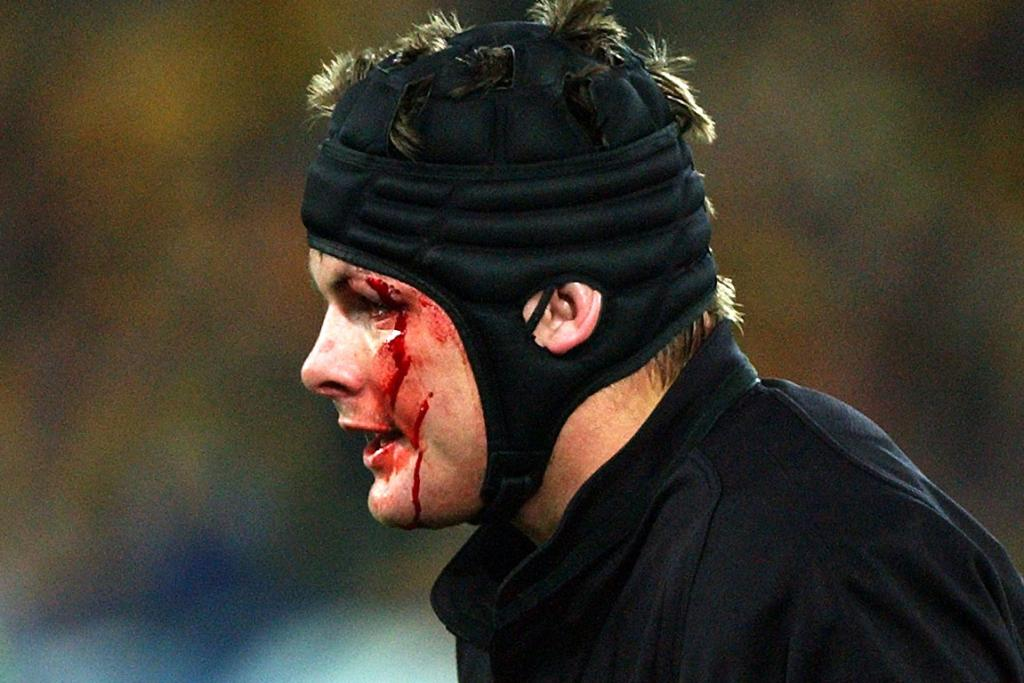 Richie McCaw leaves the field with a cut above his left eye during the Tri-Nations Bledisloe Cup match at Stadium Australia in 2002.