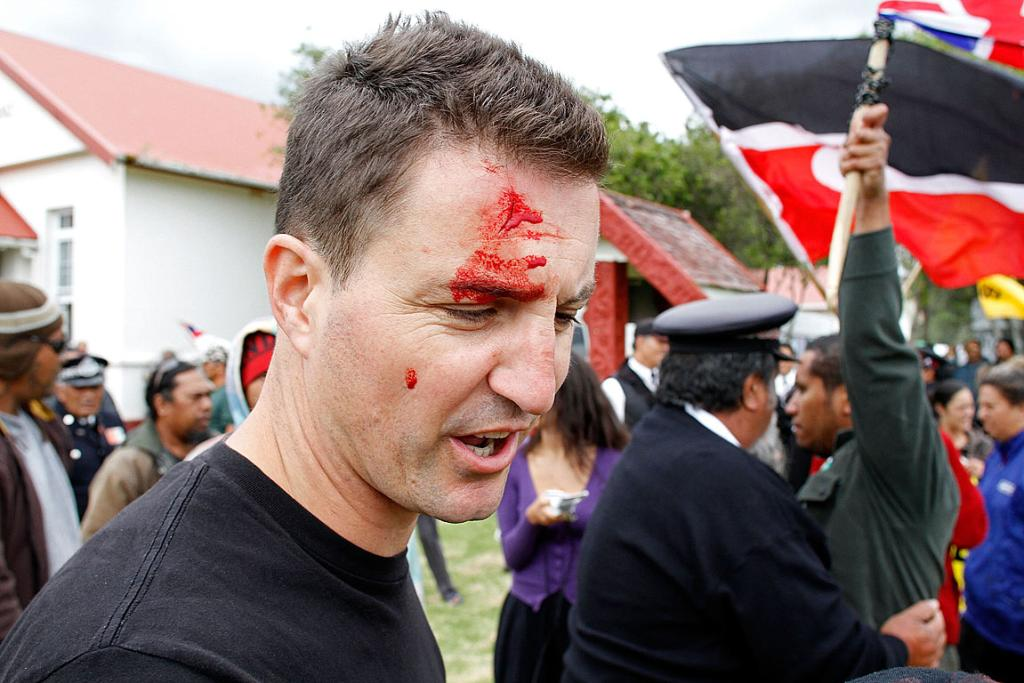 Fairfax NZ photographer Lawrence Smith sports a head wound after he had his camera pushed into his face during a scuffle.