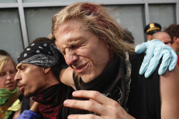 A bloodied protester grimacing from a head wound is helped away from the front lines during an anti-Nato protest march in Chicago.