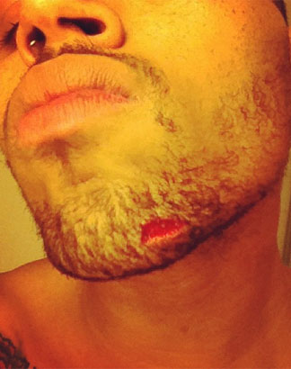 Chris Brown's cut chin