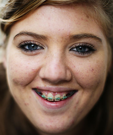 Amber Shaw, 13, from Auckland's North Shore,is having about $9000 of orthodontic work done in return for doing community work.