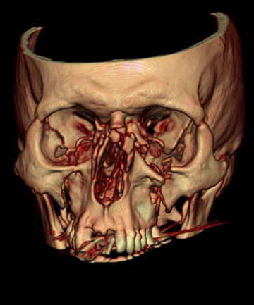 A scan of bashed firefighter Peter Fisher's skull