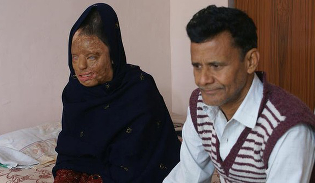 10 YEARS, 22 OPERATIONS LATEr: Sonali with her father, Chand, who never leaves her side.