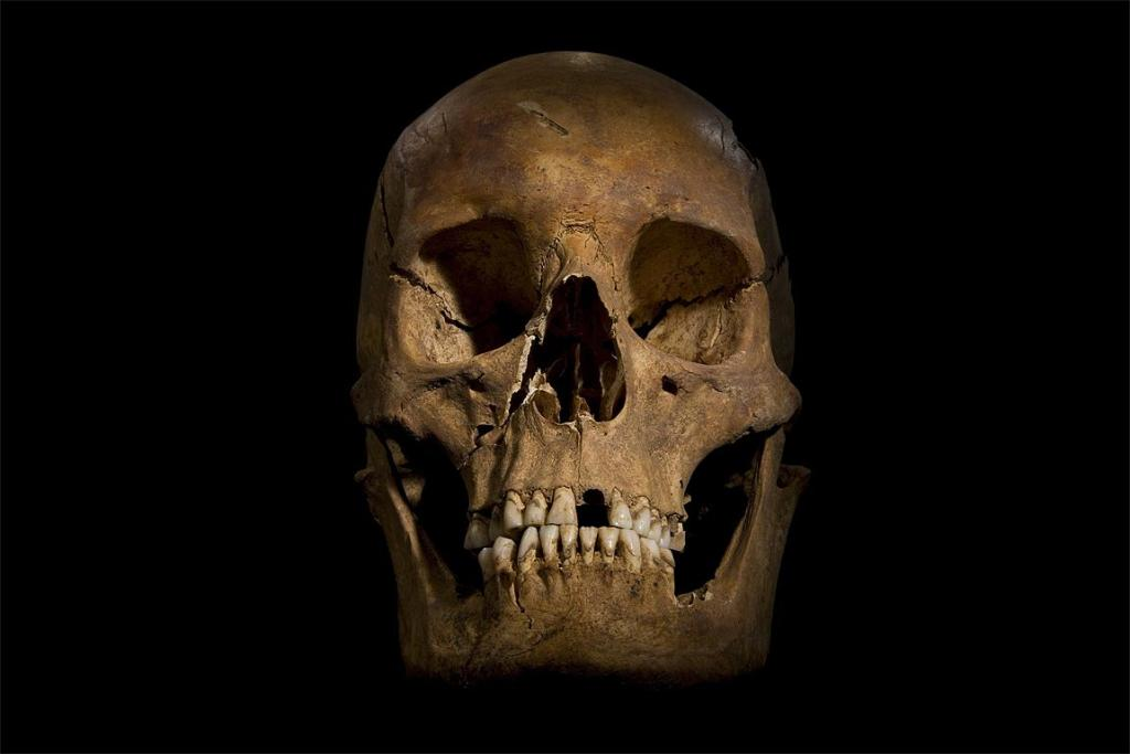 The skull of King Richard III.