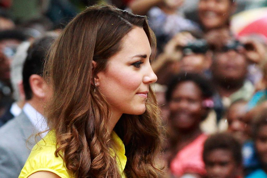 Demand for Kate Middleton-style nose jobs reportedly trebled in the UK last year.