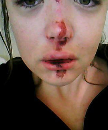 COMPLAINT LAID: Ella Mere Eketone after she was allegedly assaulted by police.