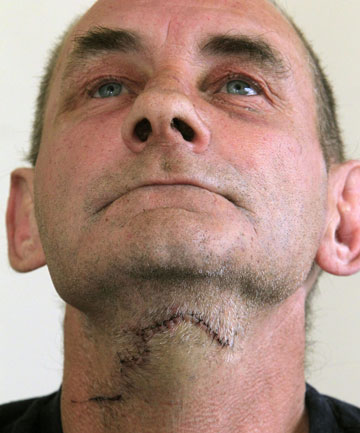 STITCHED UP: Victim Mark Wells after his throat was slashed by Steven Keith Pengelley,