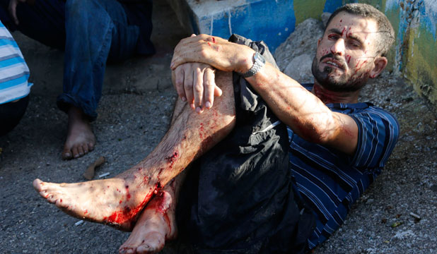 A wounded man awaits medical attention after two rockets hit his house in Beirut suburbs.