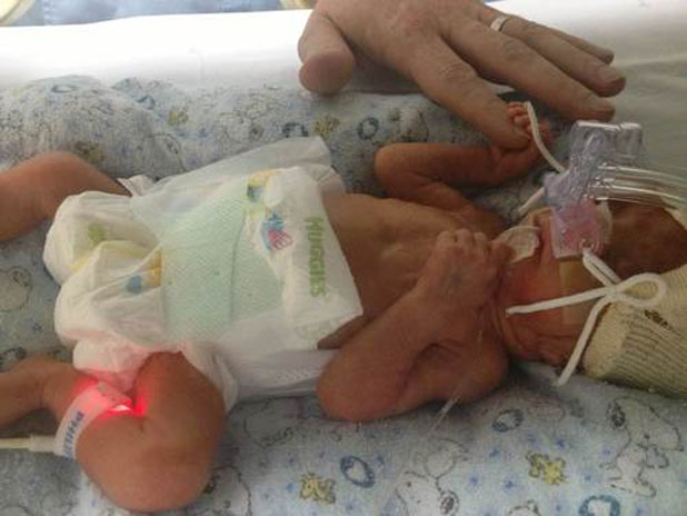 Baby lily, premature Kiwi baby in China