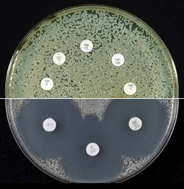 UNTOUCHABLE BUG: At the top is the superbug contracted by Brian Pool. The white circles are different types of antibiotics, which have no impact on bacteria around them. Below is a common bacterium, the cause of many skin infections, being repelled by antibiotics.