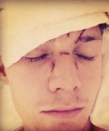 BEATEN: Barron Hilton was allegedly pummelled by a friend of Lindsay Lohan.