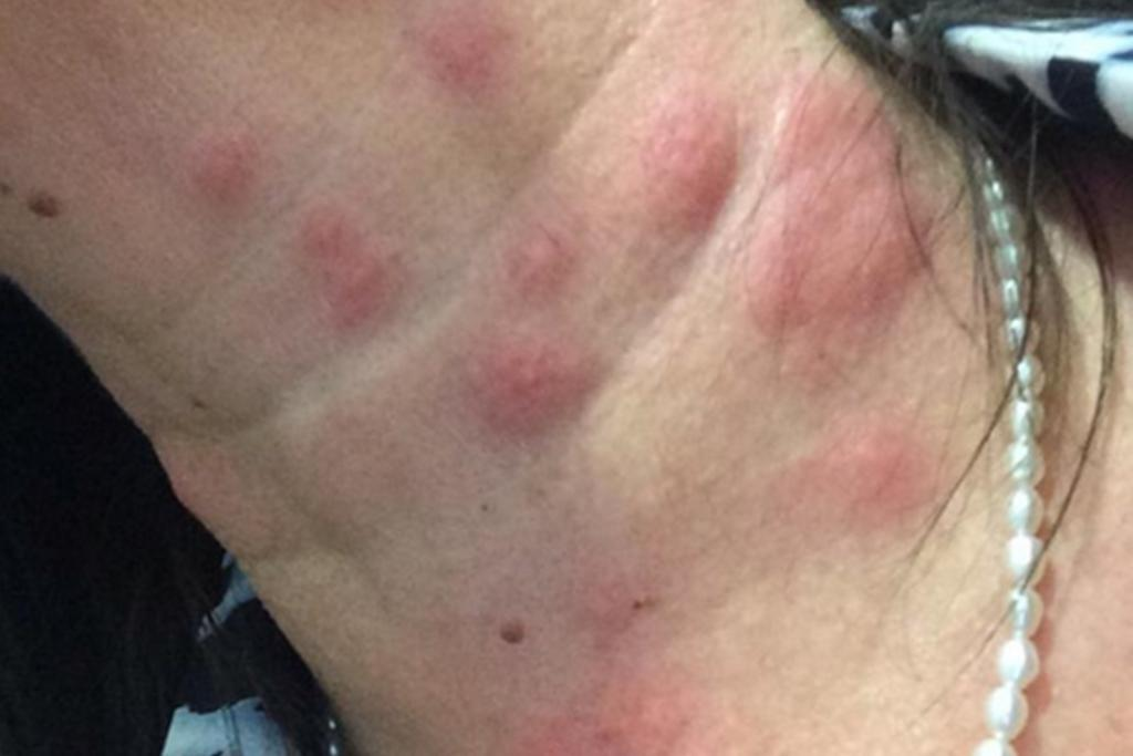 Woman Suffers 300 Bed Bug Bites Stuff Co Nz