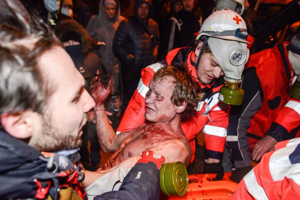 A pro-European integration protester injured during clashes with Ukranian riot police receives treatment.