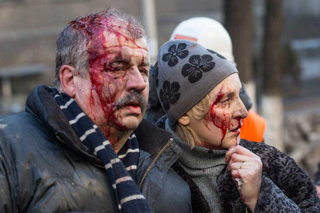 Wounded people are seen after clashes with riot police in central Kiev.