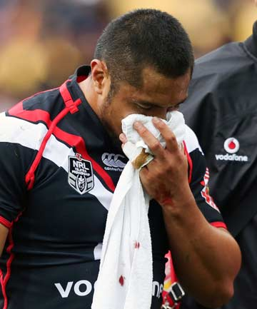 BROKEN DOWN: Jerome Ropati holds a towel over his face as he leaves the field with a broken jaw during the Warriors' win over the Tigers.