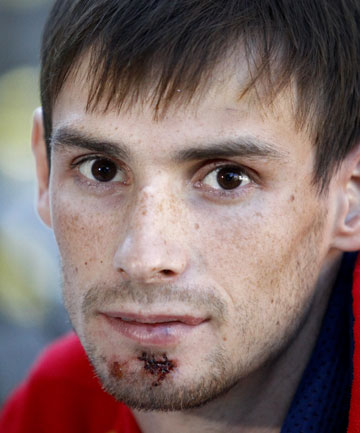 RECENT VICTIM: Russian triathlete Ivan Kalashnikov said thanks to the people who came to his aid when attacked by Pescini.