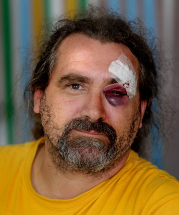 EARLIER VICTIM: Craig Huffan was punched by Pescini after refusing a window wash.