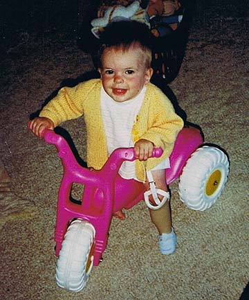 BABY STEPS: The first prosthetic Robbie Francis used was so tiny it didn't have toes.