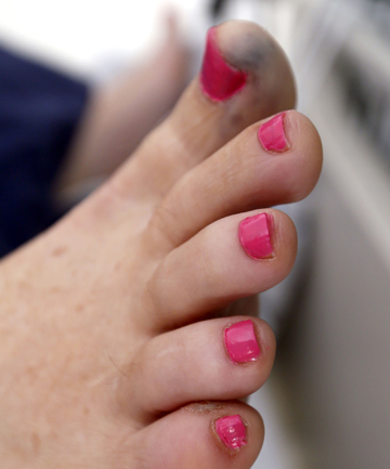 SHARING A LAUGH: Stephen Sowman's daughters took advantage of his incapacity to paint his toe nails pink as a prank.