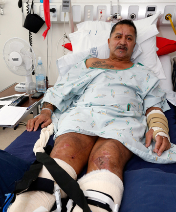 LONG ROAD: Daniel Nathan, shown in Nelson Hospital after a camper van driven by a tourist hit his work vehicle , still faces a long recovery.
