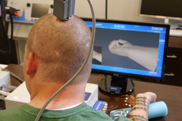 Ian Burkhart tests the device during a training session. . A port at the top of his head has a transmitter that carries signals from a chip implanted in his brain to a computer. He studies hand movement simulations on the screen that he tries to replicate with his paralyzed hand.