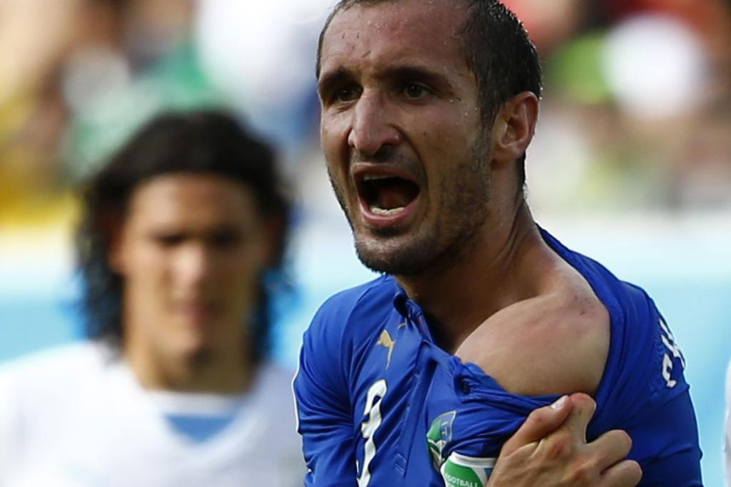 Italy's Giorgio Chiellini shows his shoulder after claiming he was bitten by Uruguay's Luis Suarez.