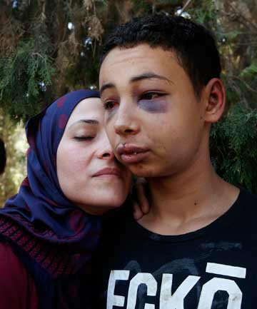 BRUISED: Tariq Abukhdeir is greeted by his mother after being released from jail in Jerusalem.