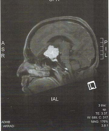 UNEXPECTED: Sally's MRI scan shows the tumour behind her left eye.