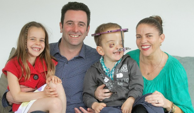 Healing halo:  Ira Berryman, 5, with sister Edith, 8, and parents Benj and Maria. Ira has Apert syndrome, a disorder that causes deformation of the skull, and has undergone more than a dozen operations.